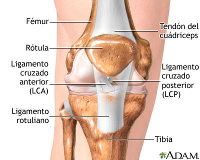 Esguince o desgarro del ligamento cruzado anterior (LCA)