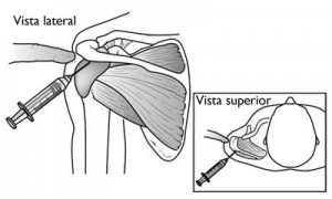 SubacromialBursaInjection