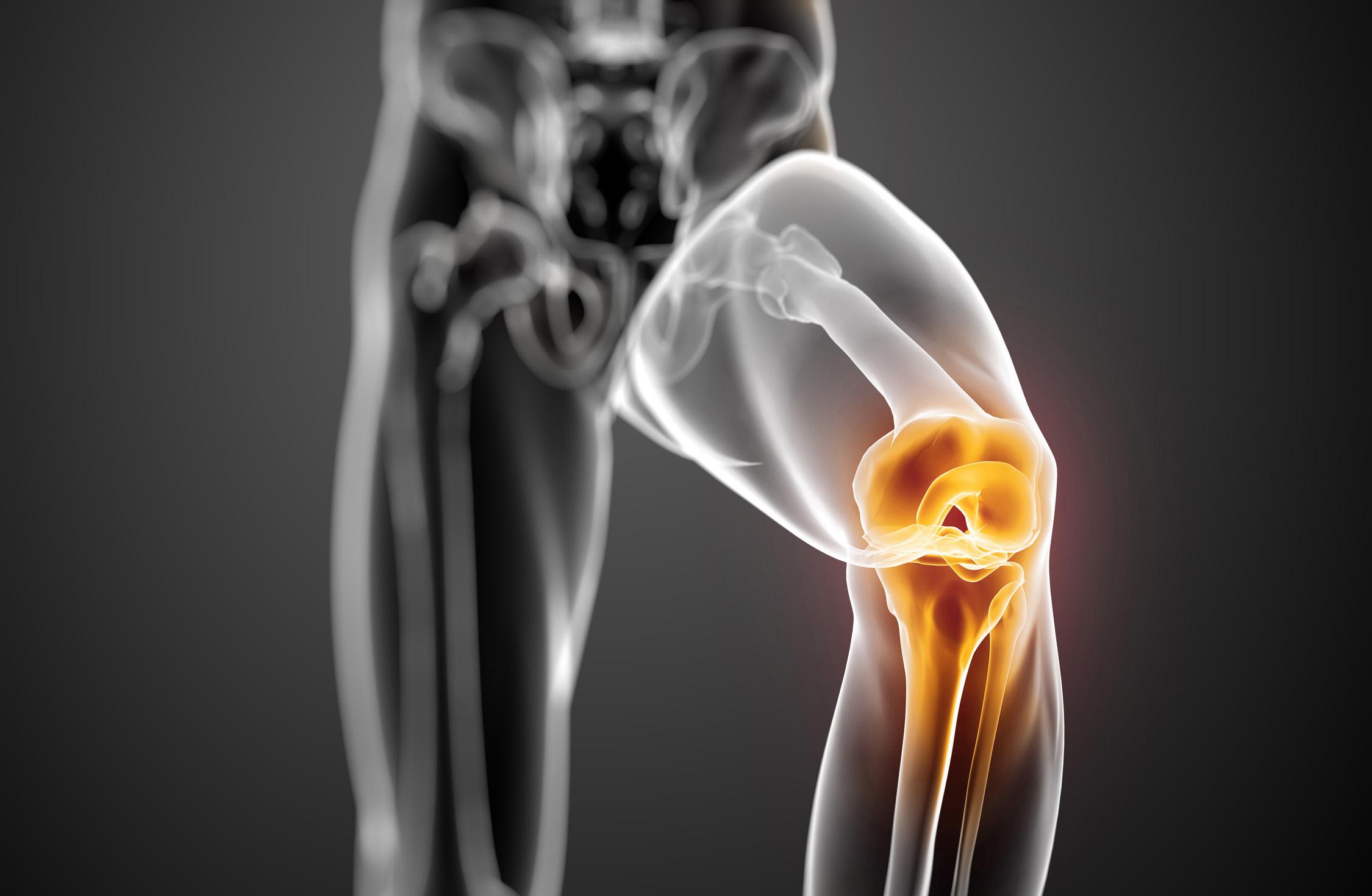 Lesión del ligamento cruzado anterior de rodilla - Dr. Ignacio Dallo