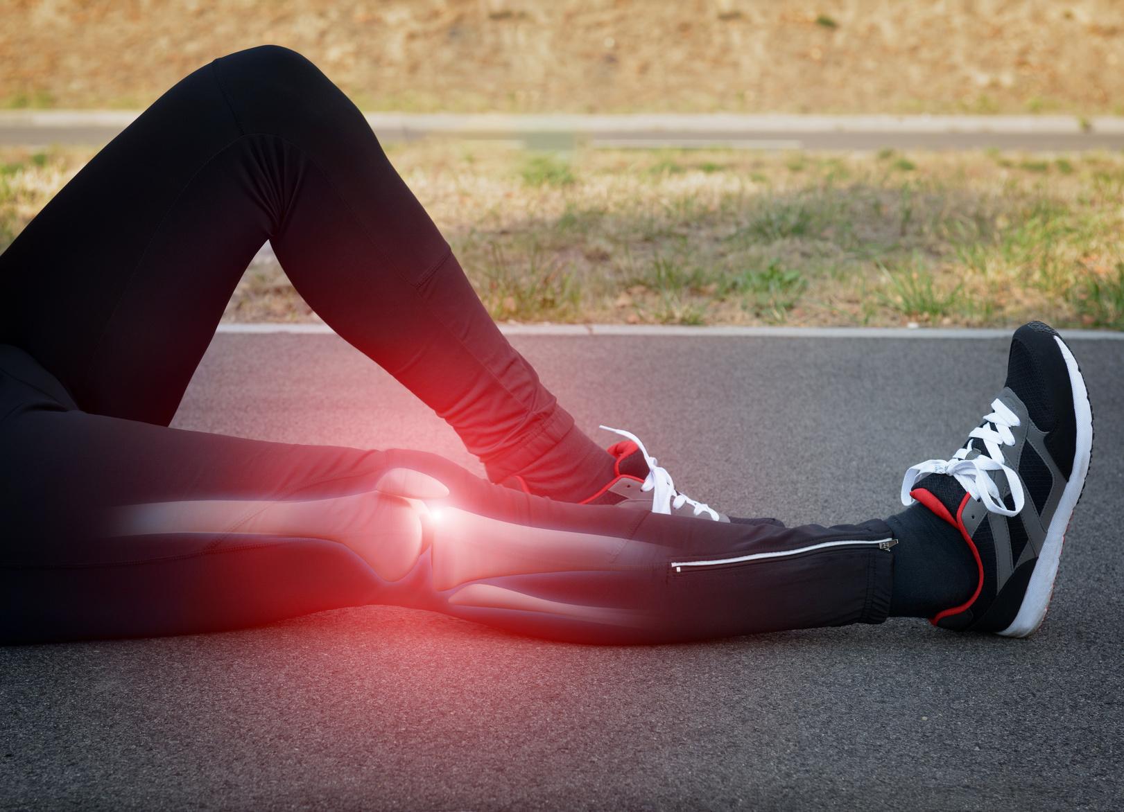 Lesión de ligamento cruzado anterior rodilla