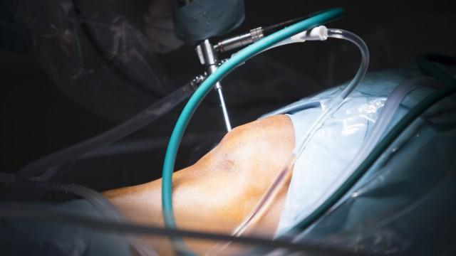 Cirugía artroscópica de rodilla – Folleto orientativo