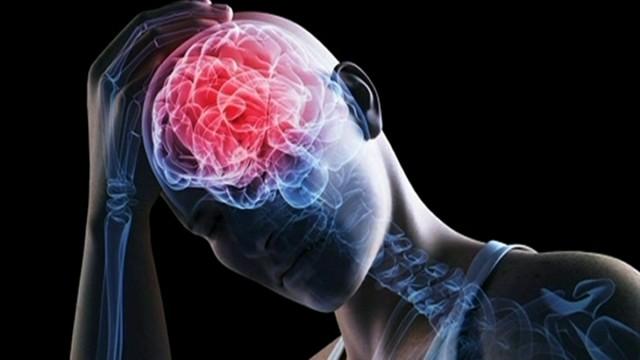 Conmoción cerebral: La U.R.R. comprometida con la cabeza de sus jugadores