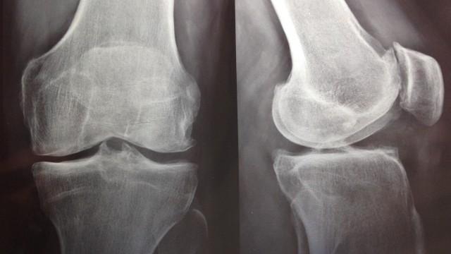 Artrosis de Rodilla – Tratamiento con Plasma Rico en Plaquetas Autólogo