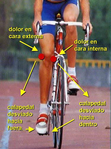 Resultado de imagen para tendinitis de banda iliotibial en ciclistas