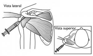 SubacromialBursaInjection