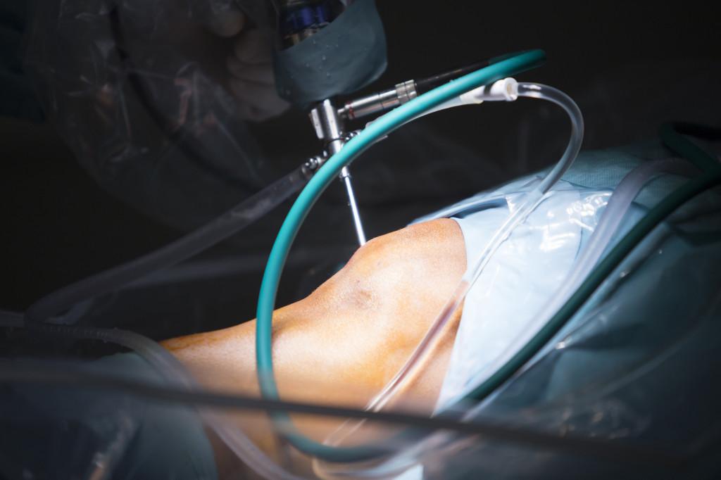 Cirugía artroscópica de rodilla procedimiento