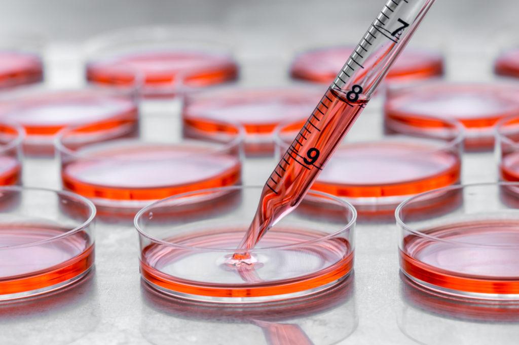 Preparación de Concentrado de Células Madre y Factores de Crecimiento Médula Ósea