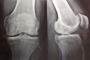 Radiografíade rodilla frente y perfil con signos de artrosis avanzada.